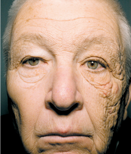 Unilateral Dermatoheliosis (one-sided sun damaged skin)